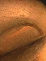Micro 08. Detail of fingernail showing highli…