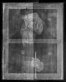 X-ray mosaic 01. X-ray image of the whole pai…