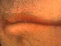 Micro 04. Lips (7.1 x mag).