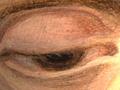 Micro 01. Eye (left side) (7.1 x mag).