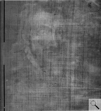 X-ray showing the canvas weave